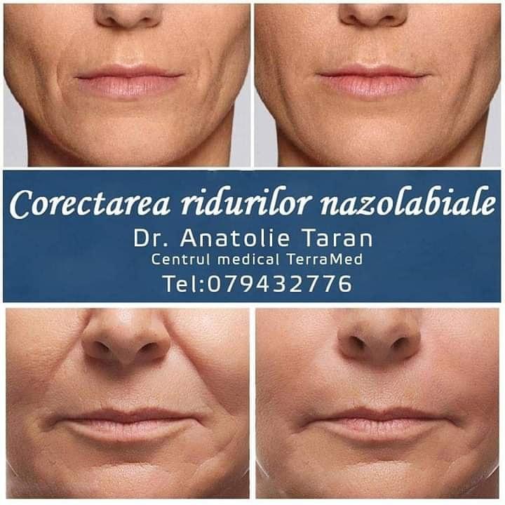 inlaturarea ridurilor faciale nazolabile
