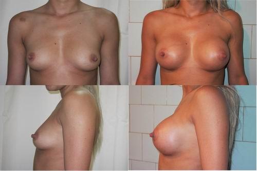 operatie implant mamar