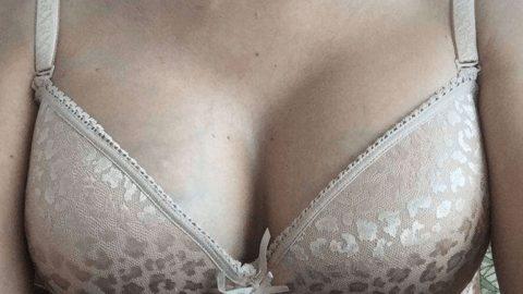 recenzie dupa augmentare mamara