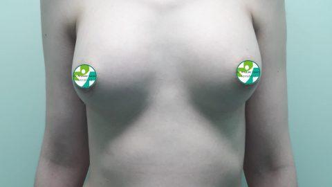 Cazuri clinice augmentare mamară (operații de mărire sâni) realizate de Prof. Dr. Anatolie Taran