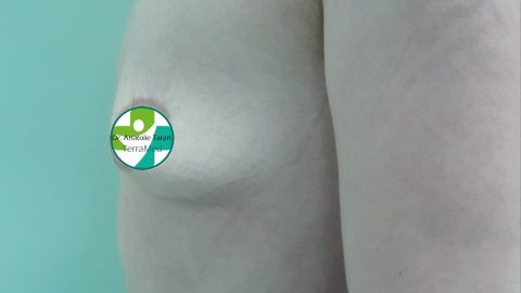 Cazuri clinice - Augmentare mamară (operație mărire sâni) realizate de chirurgul plastician Prof. Dr. Anatolie Taran: