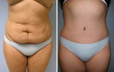Cazuri clinice abdominoplastie realizate de Prof. Dr. Anatolie Taran